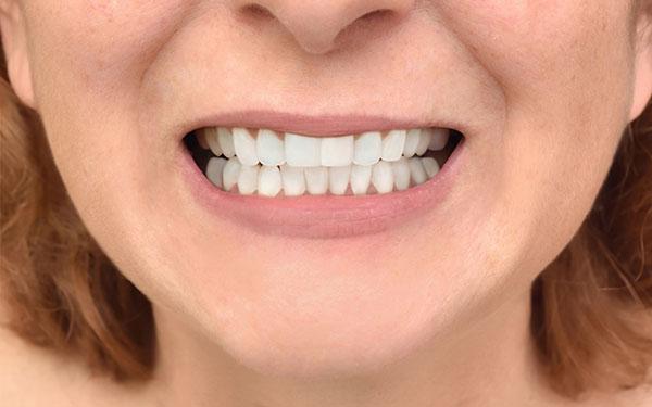 ortodoncia después