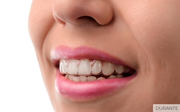 ortodoncia-invisalign-pamplona