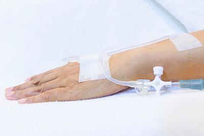 Sedación consciente intravenosa