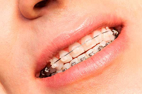 Estudio ortodoncia