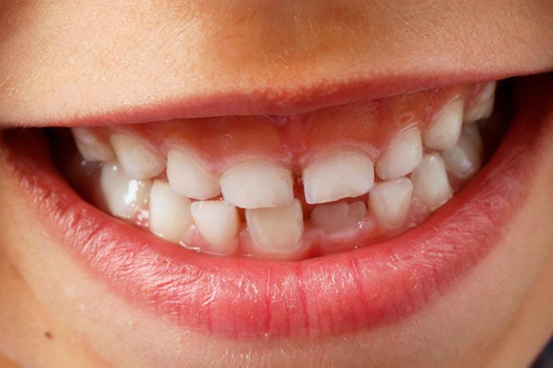 Cómo nos salen los dientes
