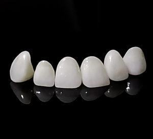 carillas dentales pamplona